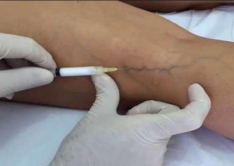 skleroterapija-sosudistyh-zvezdochek-na-nogah