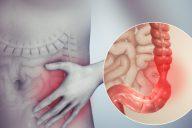 sindrom-razdrazhennoj-kishki