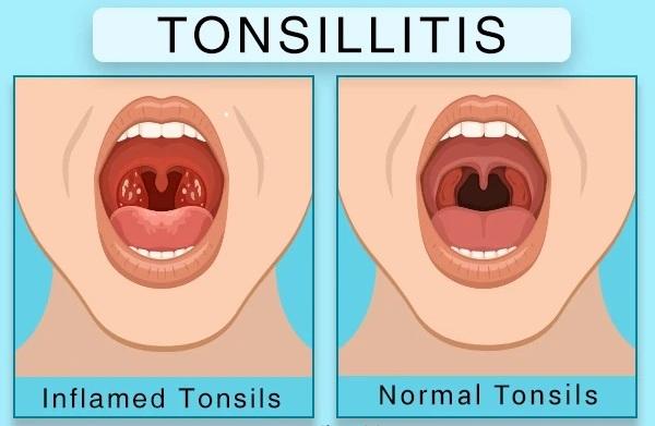tonsillit-1